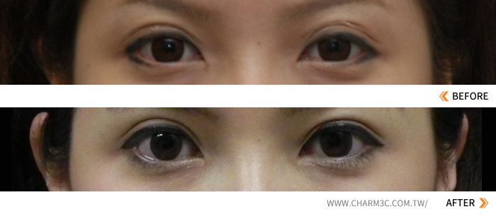 微創雙眼皮|雙眼皮重修|韓式雙眼皮 風華整形
